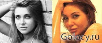 На фотографии Лиза Кутузова до операции и после